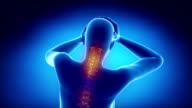 Pain in cervical spine video