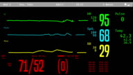 Patient's revival after clinical death, vital signs rising on ICU monitor video