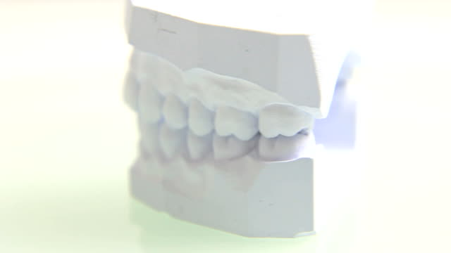 Plaster cast of teeth video