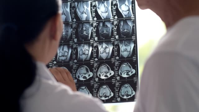 Professional colleagues examining x ray scan video