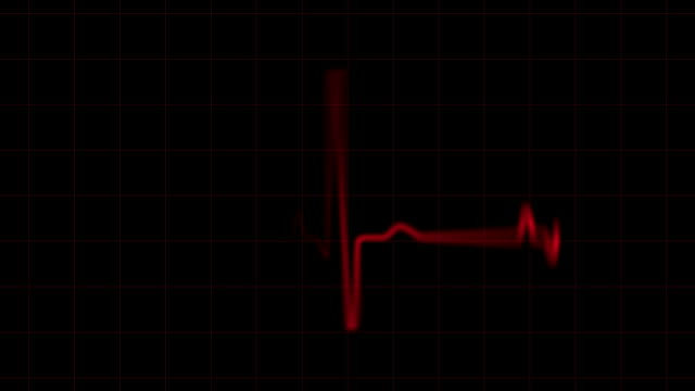 Pulse Trace video