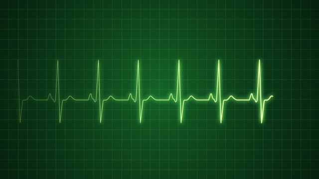 EKG Pulse Trace with Sound | Loopable video