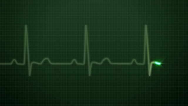 EKG / Pulse Waveform HD video