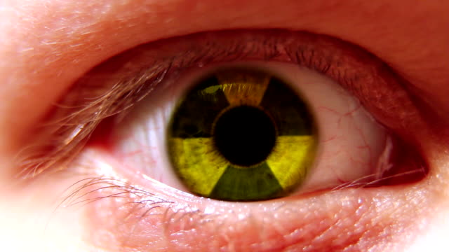 Radiation sign in eye video