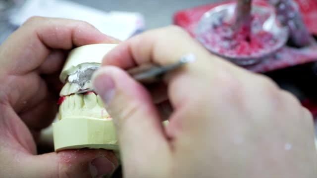 Repairing dental prosthesis with tool video