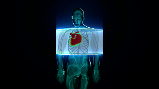 Rotating, scanning heart. Human cardiovascular system, X-ray light. digital display. video