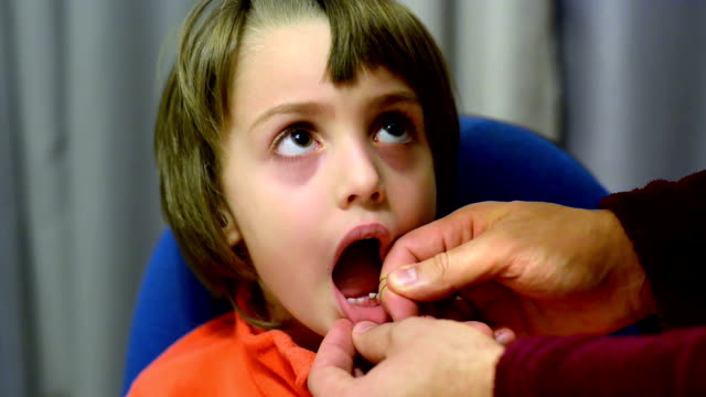 Rudimentary Tooth Extraction video