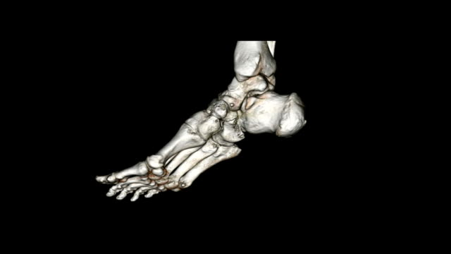 CAT scan image of foot video