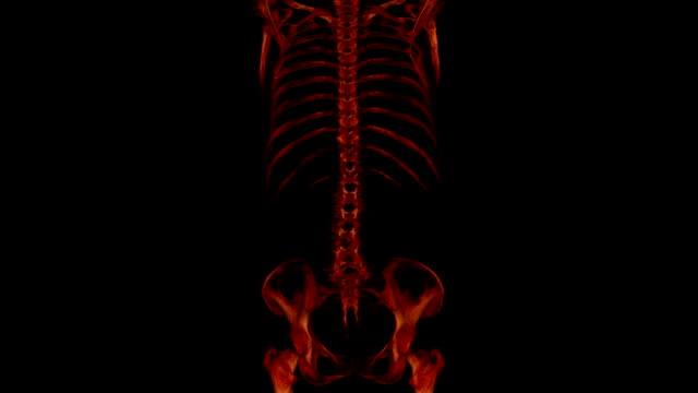 CAT Scan of human bone video