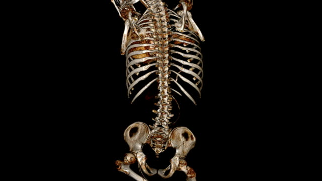 CAT Scan of human chest video