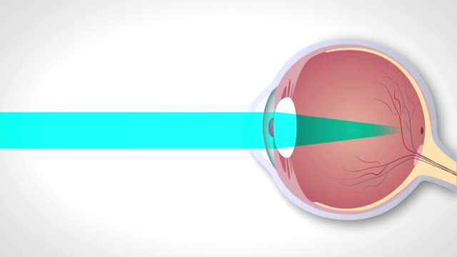 Schematic representation of hyperopia, myopia and astigmatism video
