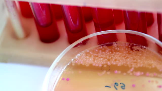 Scientific laboratory. Colonies of bacteria in petri dishes video