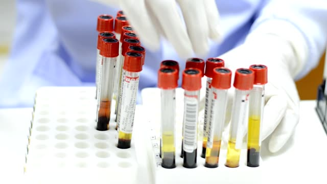 scientist keep a blood tube video