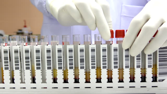 scientist keep blood sample for infectious control video