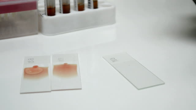 scientist testing in Hematology video