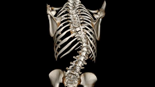 Scoliosis video