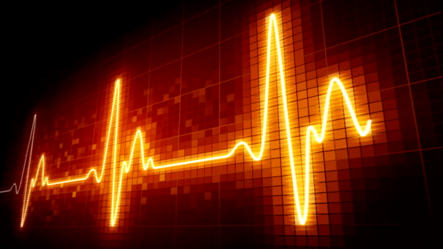 Seamlessly looping EKG heart monitor. HD720p. video