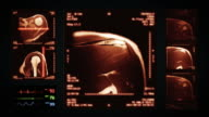 Shoulder MRI Scan. Top, front and lateral view. Amber.. video