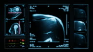Shoulder MRI Scan. Top, front and lateral view. Blue. video