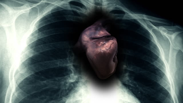Sick Human Heart Inside Of X-Ray video