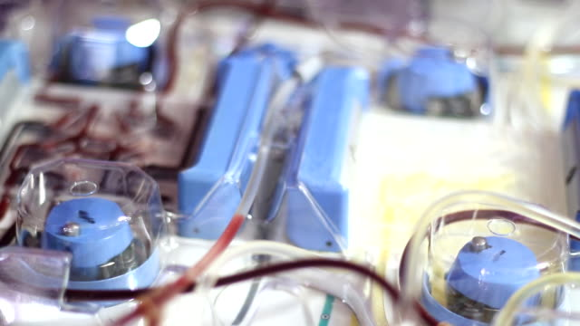 Single Donor Platelets Blood separation machine in the hospital video