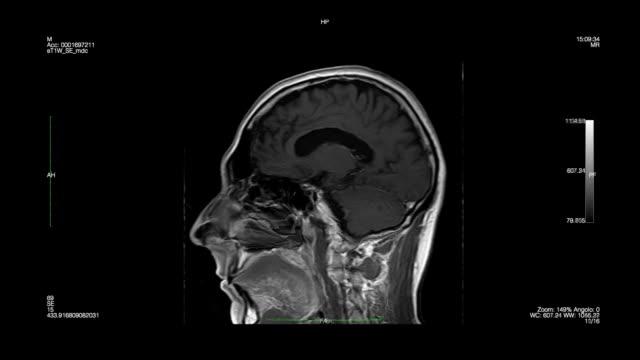 Skull-Magnetic Resonance Imaging video