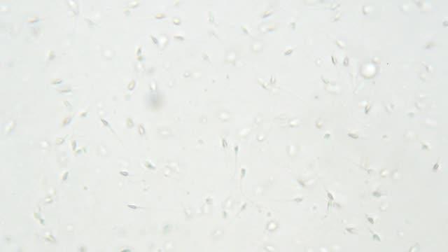 Sperm under microscope 400x video