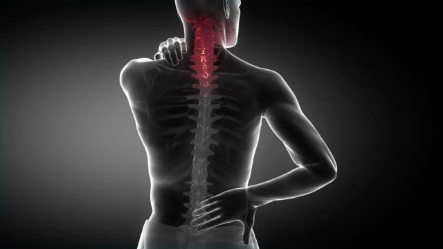 Spine injury pain in sacral and cervical region concept video