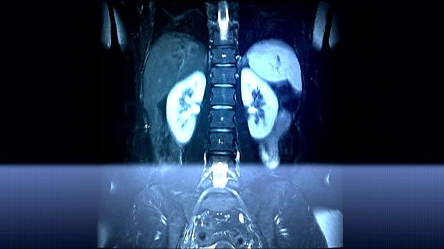 Spine MRI Scan video