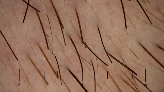 Stubble under micoscope video