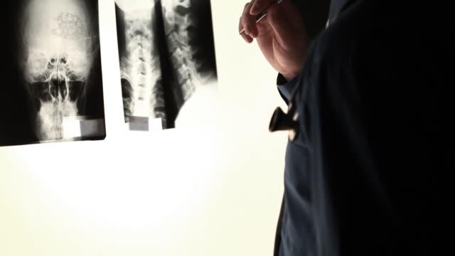 Surgeon Analyzing X-ray video