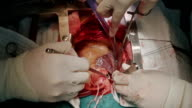 Surgeon Apply Venous Cannula video