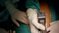 Surgeon use saw to Open Sternum video