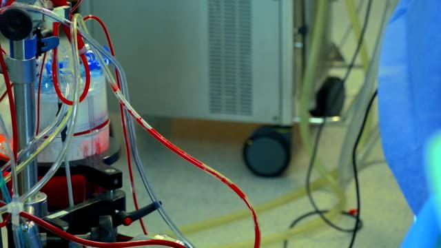 Surgery. Cardiopulmonary bypass machine video