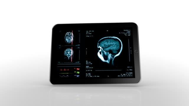 Tablet animation. Brain MRI scan. White background. video