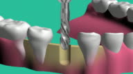 Technology installation of dental implants video