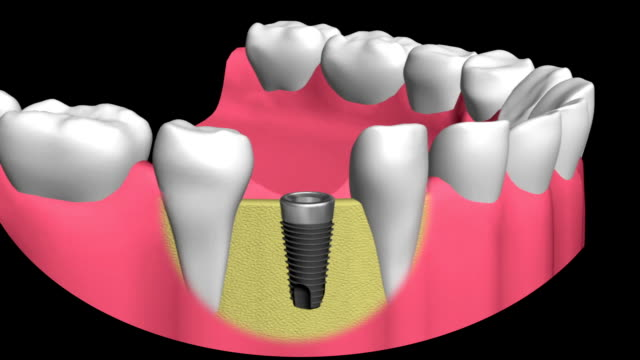 technology of dental implants video