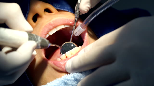 Teeth Dental Cleaning Service at Clinic with Dentist video