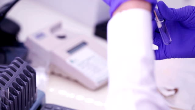 The bacteriologist is working with sample in laboratory video