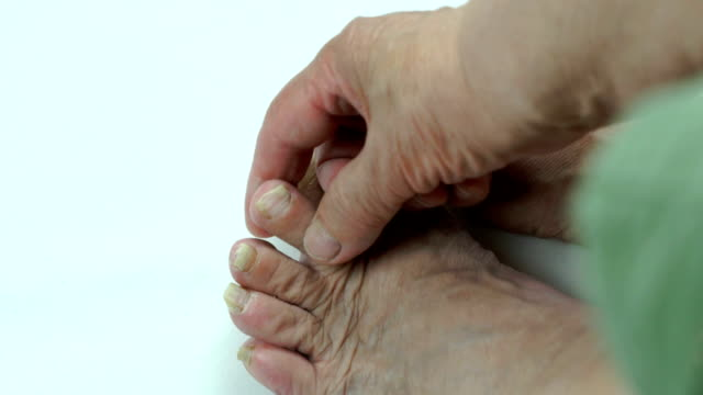 Toenails of woman with fungal infection video