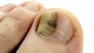Toenails with fungal infection. Sick nail. Fungus of big toe video