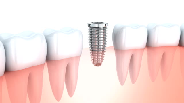 Tooth implantation 3d video