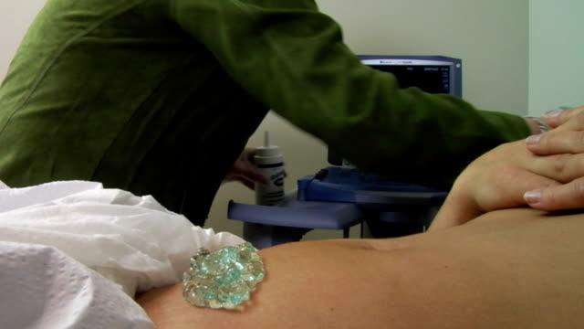 Ultrasound to determine pregnancy video