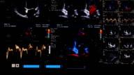 Ultrasound (HD) video