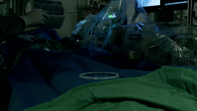 Vascular surgery. video