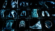 MRI video wall. Black and white. Loopable. Lateral dolly. video