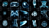 MRI video wall. Black and white. Loopable. Locked down. video