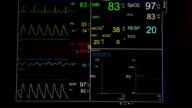 Vital signs monitor (HD) video