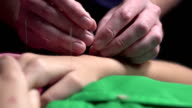Woman having Acupuncture done on her hand video