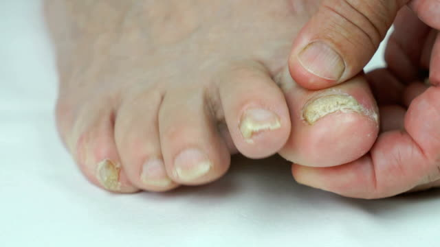 Woman's feet has fungal infections of toenails video